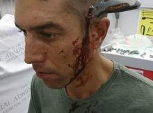 uomo con coltello in testa_21164300