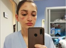 coronavirus_infermiera_virale_10170859