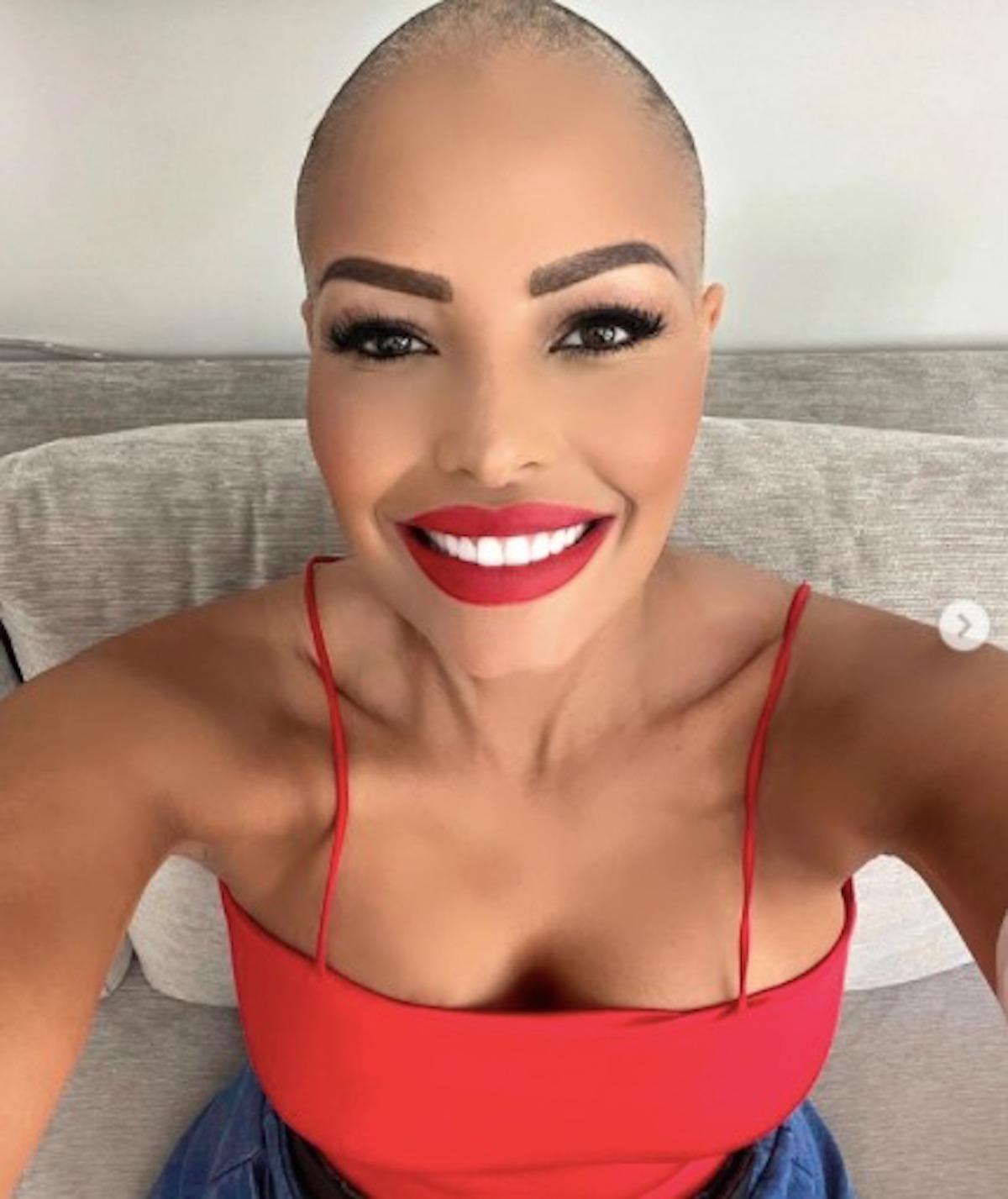 Carolina-Marconi-cancro-capelli-rasati4